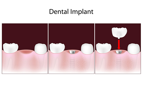 dental implants 07417